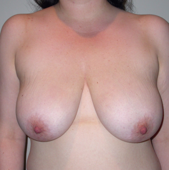 Vertical Breast Lift before 275502