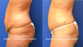 Mini Tummy Tuck 568404