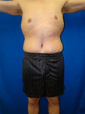 Male Tummy Tuck Surgery (abdominoplasty) Solana Beach, California after 131612