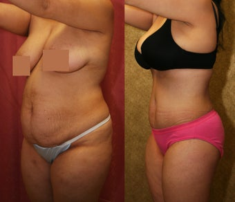 tummy tuck  after 304704