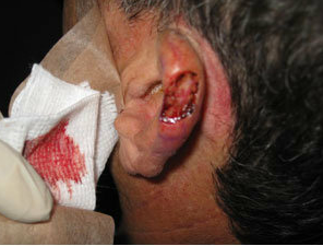 Skin Cancer Surgery on Ear before 561007