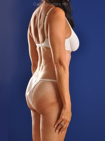 Vaser Hi Def Liposuction of abdomen, thighs, flanks and back with fat injections to buttocks 422731