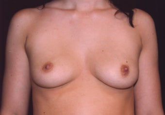 Breast augmentation before 401089