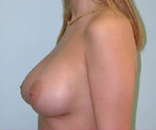Breast Implants after 476827