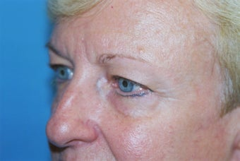Blepharoplasty before 570475