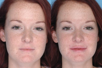 Juvederm Lip Augmentation before 380042