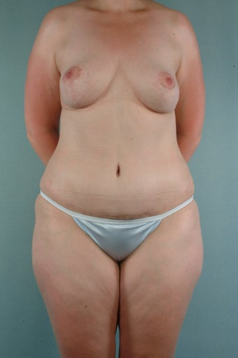 Breast Reduction & Tummy Tuck after 241311