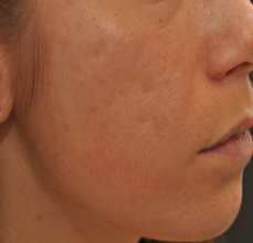 Acne Scarring 426033