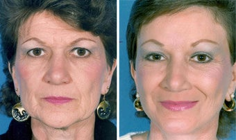Cheek Lift and Augmentation before 296646