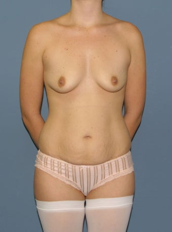 Mommy Makeover- Trans-abdominoplasty breast augmentation before 481488