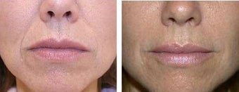 Restylane for nasal labial folds before 60634