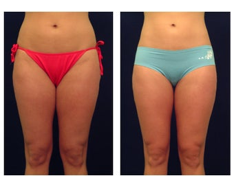 Liposuction before 286662