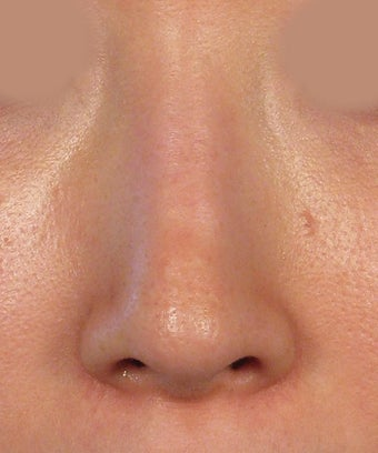 Revision Rhinoplasty after 410604