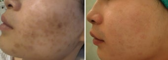 Green peel to hyper-pigmentation of cheek before 9841