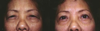 Asian upper blepharoplasty before 210099