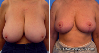 Breast Reduction before 217803