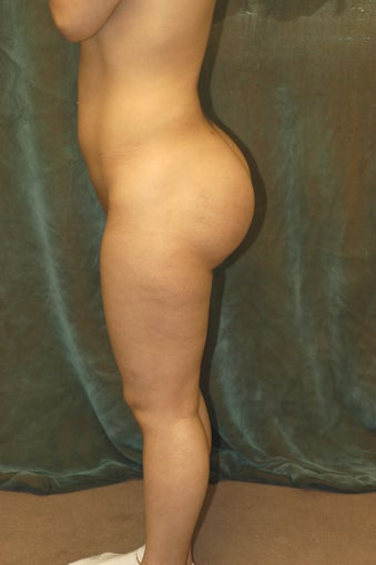 Women's Buttocks Augmentation   after 518153