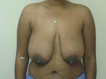 Mastopexy, breast lift before 365124