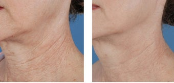 Active FX Fractional Laser Resurfacing before 253988