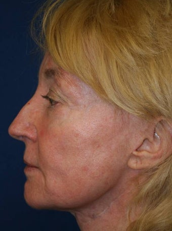 Sculptra Liquid Lift after 137175