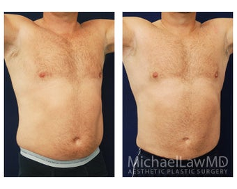 Liposuction after 495047