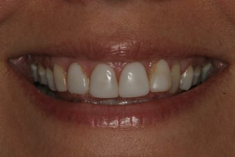 Smile Makeover with 8 Veneers before 206797