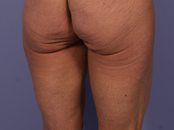CoolSculpting to Banana Roll, Upper, Posterior thighs before 563824