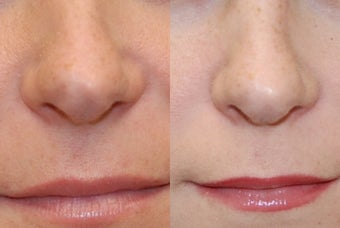 Non-Surgical Rhinoplasty using Silikon-1000 before 256515