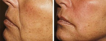 Sculptra for facial wrinkles before 6550