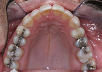 Invisalign after 372721