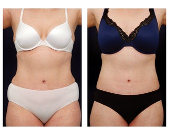 Liposuction before 397021