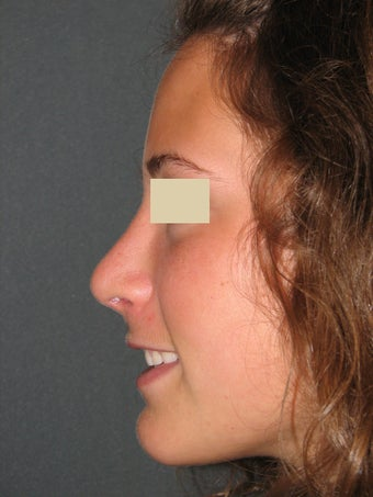 Rhinoplasty  after 130373