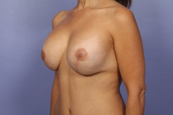 Mommy Makeover- Breast Augmentation after 466147