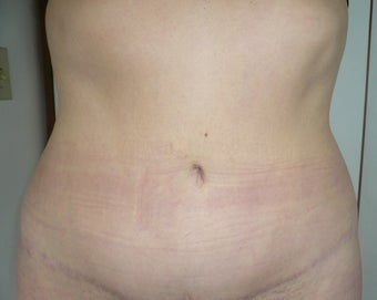 Smartlipo / liposuction after 166270