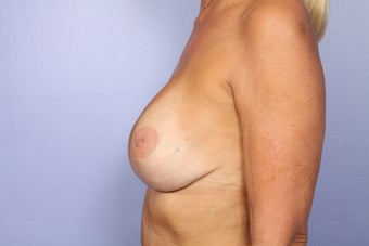 Breast Revision Surgery  after 306999