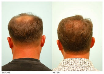 Crown (Vertex) Hair Transplant before 134775