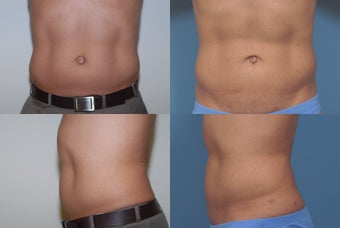 Smartlipo before 409360