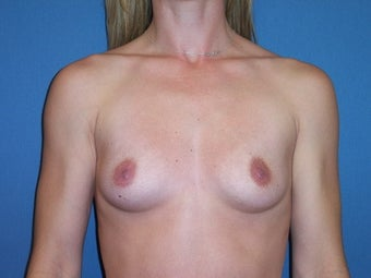 Breast Augmentation with moderate profile silicone implants before 88333