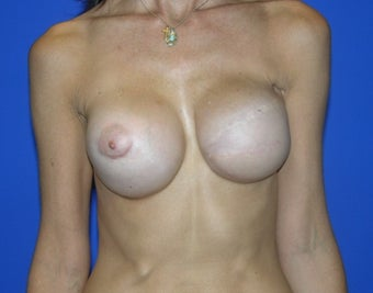 Breast Reconstruction after 482769