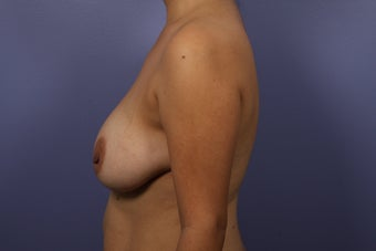 Breast Augmentation 467223