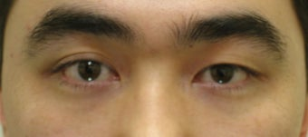 Asian blepharoplasty before 259538