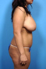 breast reduction and liposuction to abdomen and love handles 445405