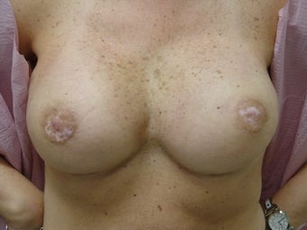 Breast Reconstruction after bilateral nipple sparring mastectomy after 344817