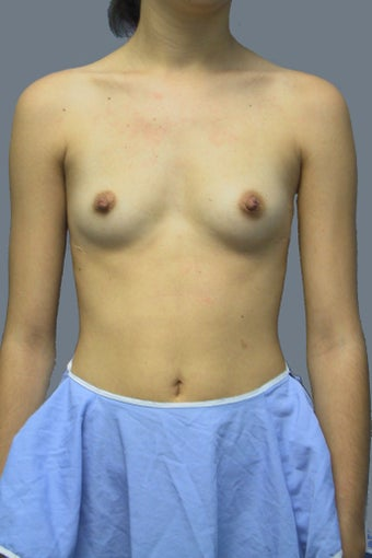 Breast augmentation /implant before 539096