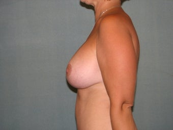 breast lift with augmentation 348052