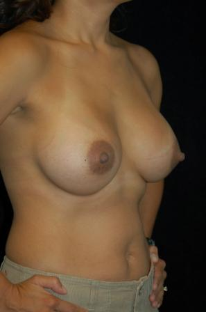 Breast Augmentation 391967