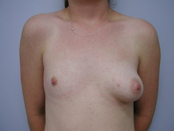 Breast Reconstruction before 589938
