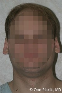 Otoplasty before 567309