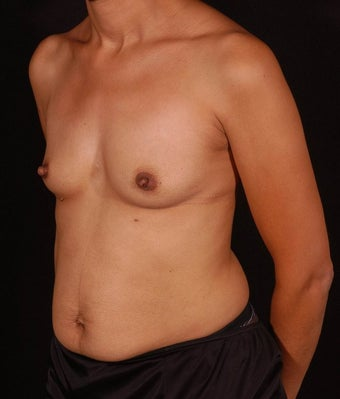 Breast Augmentation before 139715