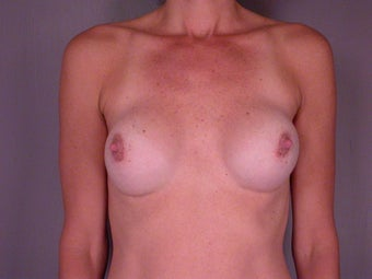 Breast Revision before 307224